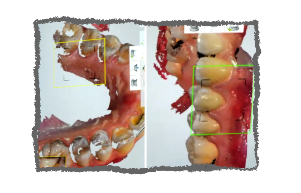 Scanner, Orthognathic surgery CAD/CAM, virtual surgical planning with 3D technologies