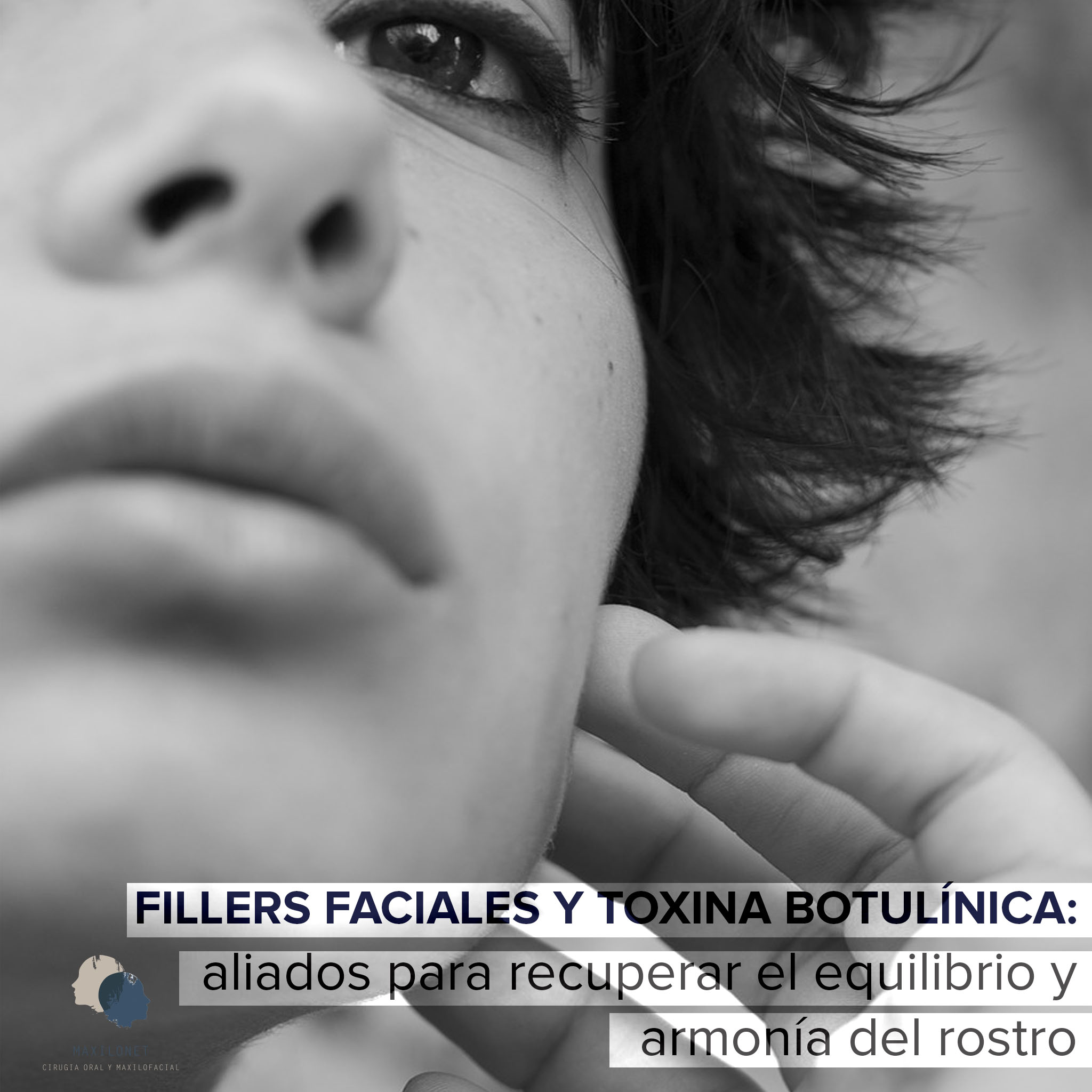 FILLERS Y TOXINA BOTULÍNICA