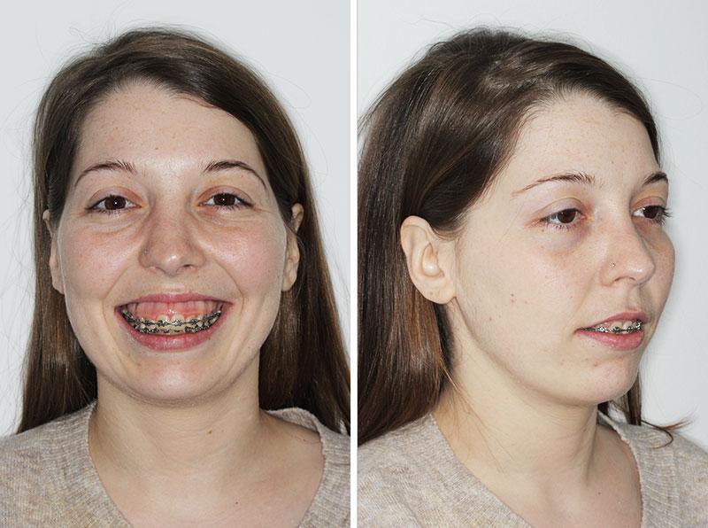 Caso: Maloclusión y deformidad dentofacial